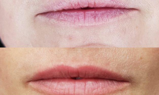 Maquillage permanent bouche «Candy lips». Cliente de Villefranche.