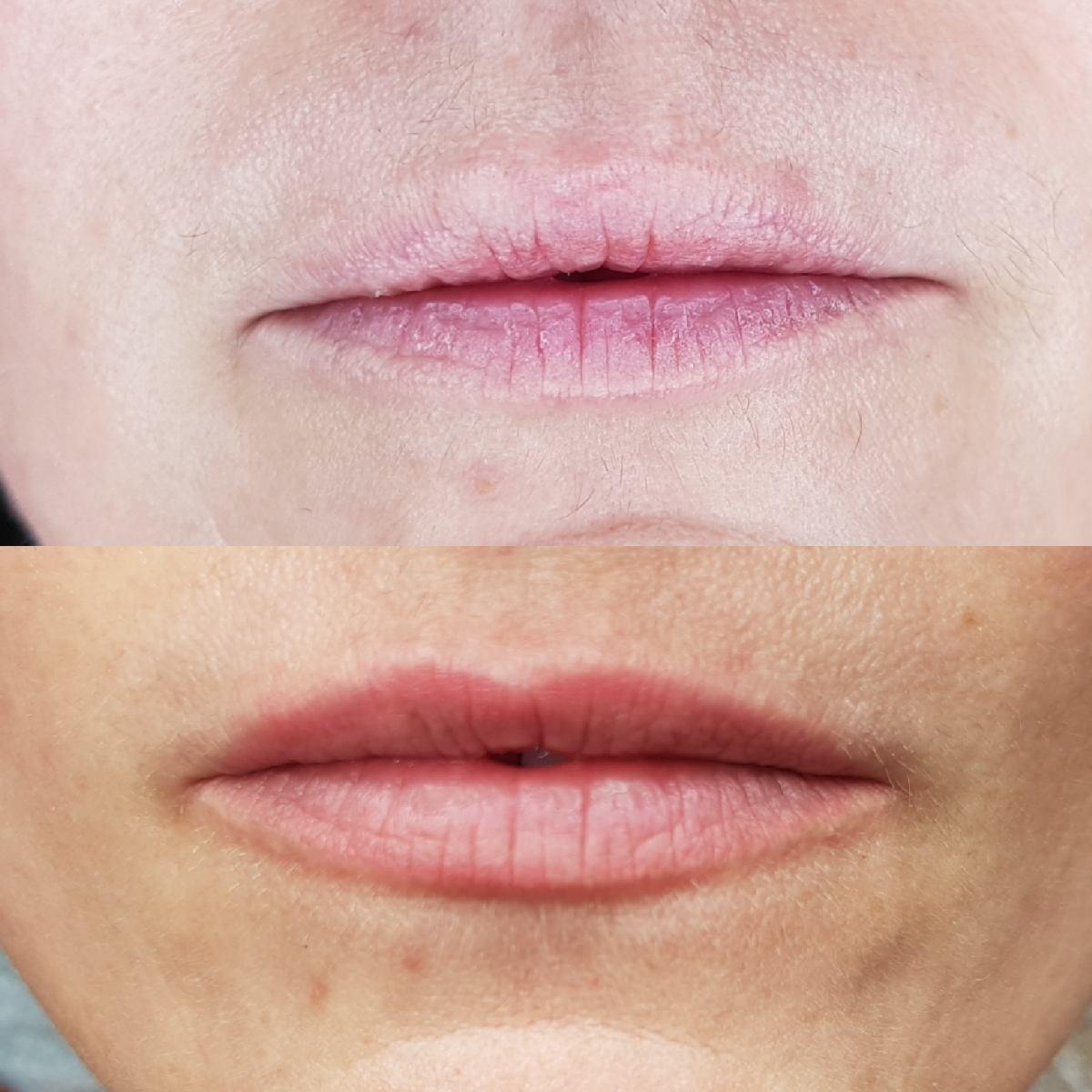"""Maquillage permanent bouche """"Candy lips"""". Cliente de Villefranche."""